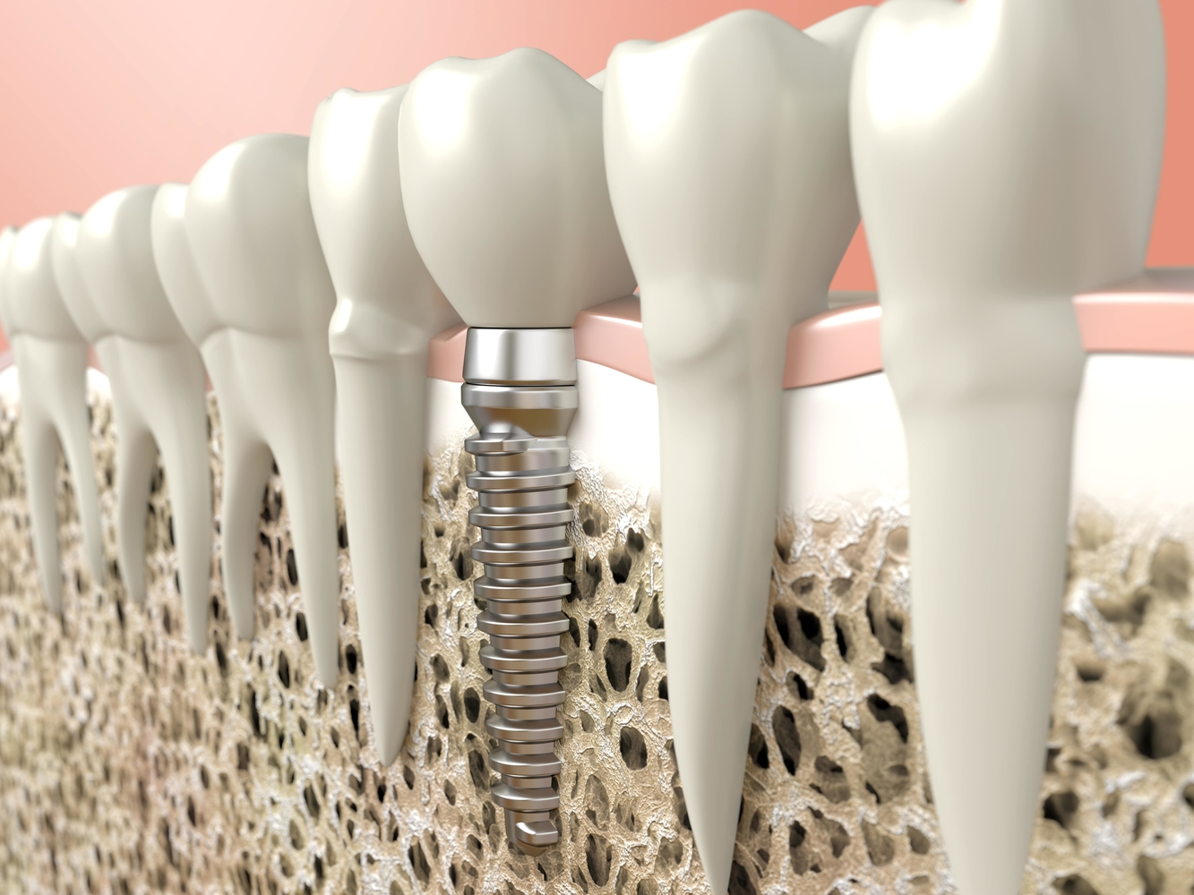 all-on-4-dental-implants-calculating-the-cost-and-value