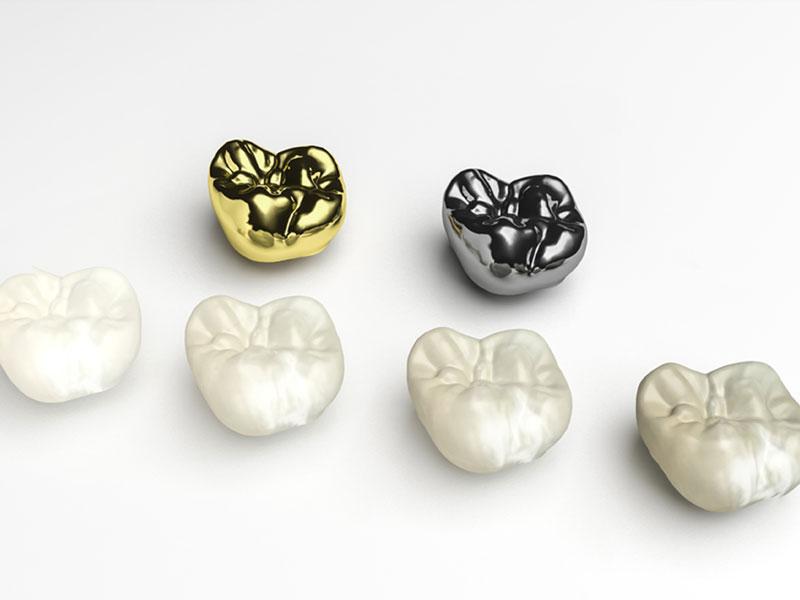 dental crowns in winnipeg